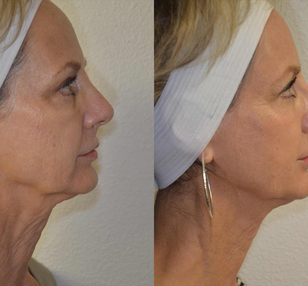 best_Sculptra-charlotte-nc-results-south-end-re-salon-and-med-spa