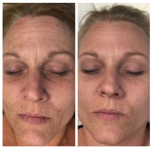 before-and-after-Clearskin-Laser-using-SkinStylus®