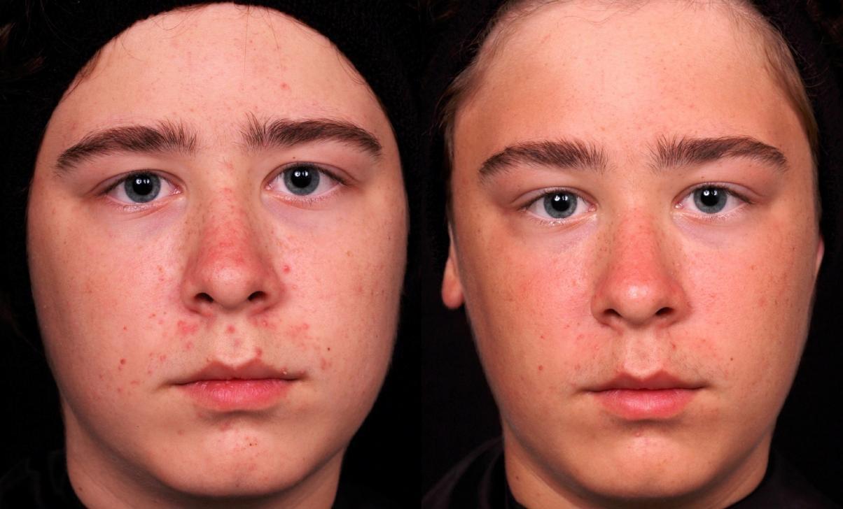 acne-full-face-1-1204x728
